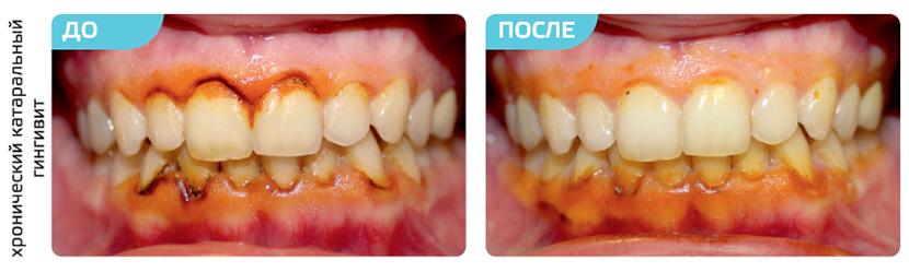 плазмолифтинг десен фото до и после