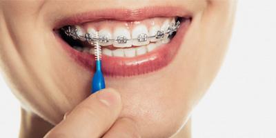 Зубні йоржики при носінні ортодонтичних конструкцій