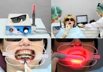 ФДТ в стоматологии
