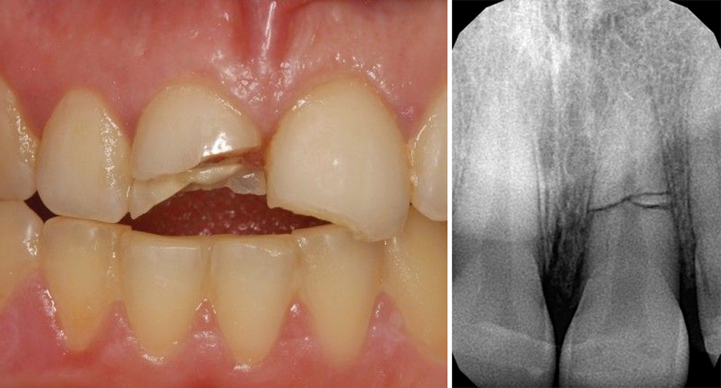 Причины пульпита -перелом зуба