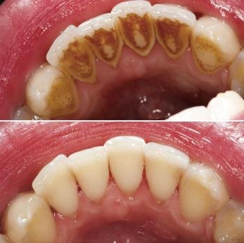 чистка зубов ультразвуком до и после